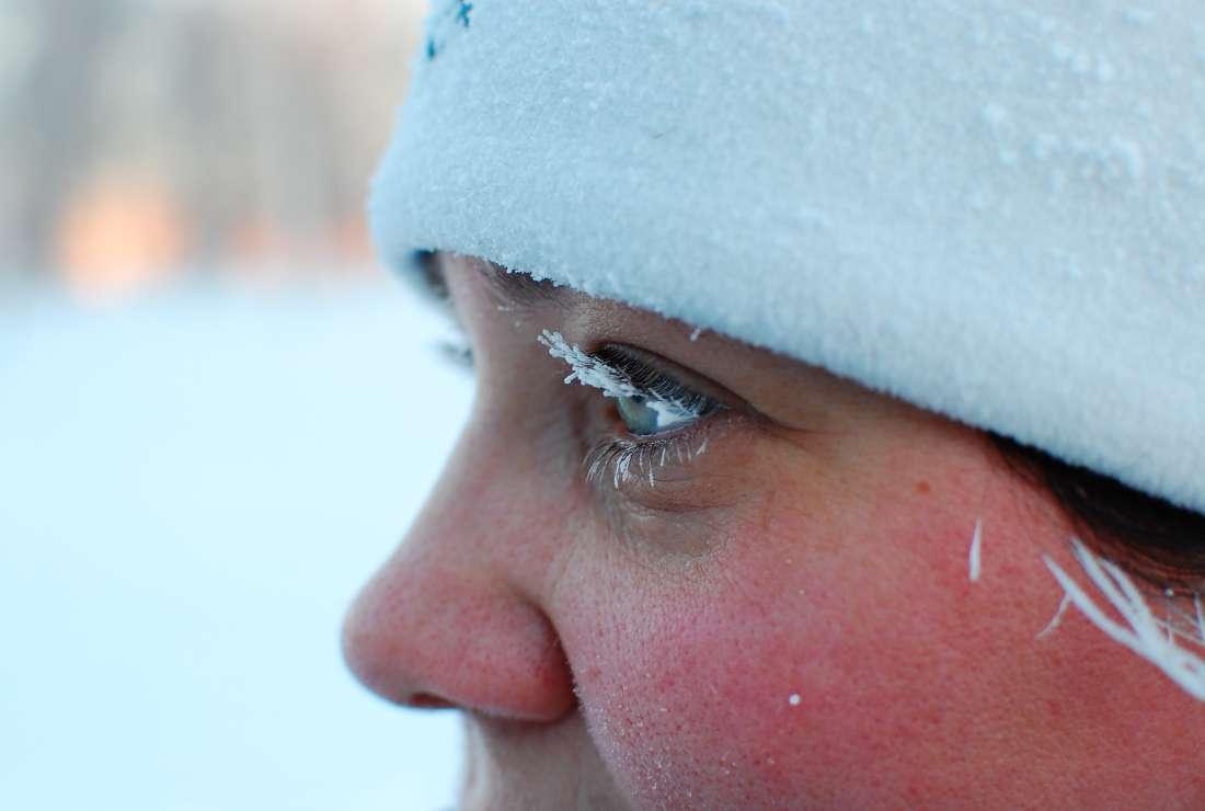 Школа первой медицинской помощи: что делать при обморожении