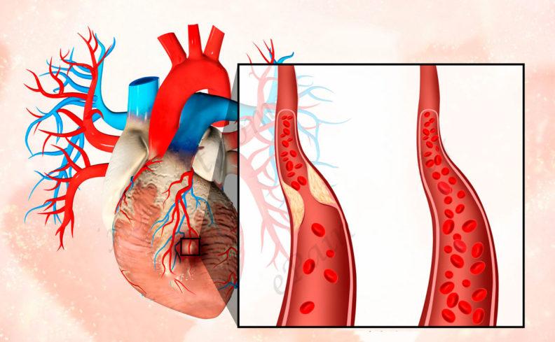 Заболевание, инфаркт миокарда