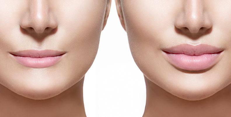Контурное моделирование губ: путь к идеальной форме