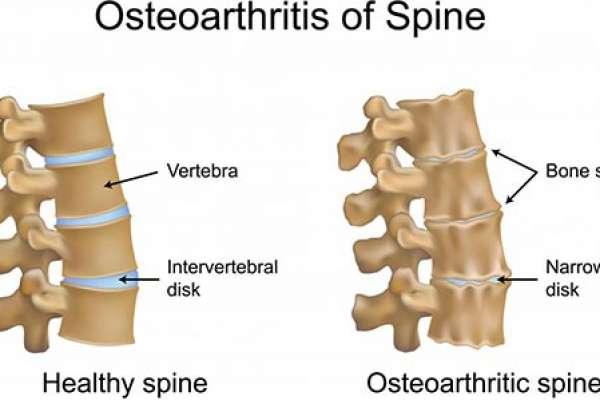 Остеофиты шейного отдела позвоночника: лечение и меры профилактики