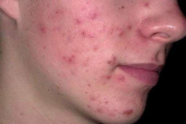 Болезненные прыщи на лице: причины