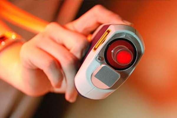 Эпиляция диодным лазером: отзывы, принцип действия