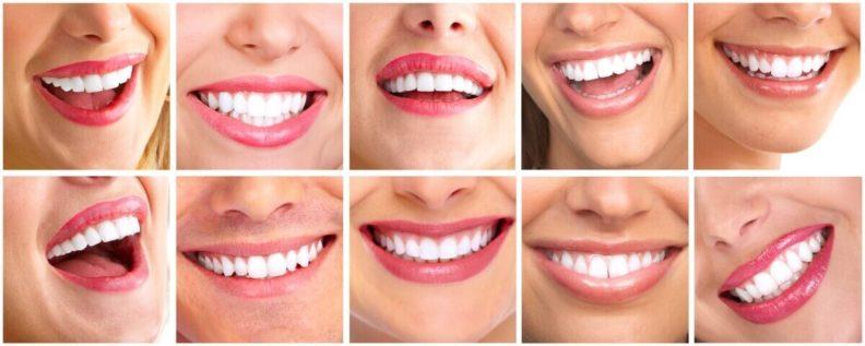 Индустрия косметической стоматологии достигает нового бума