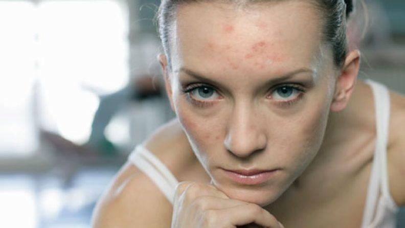 Чем лечить проблемную кожу
