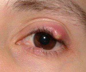 Можно ли избавиться от халязиона на глазу