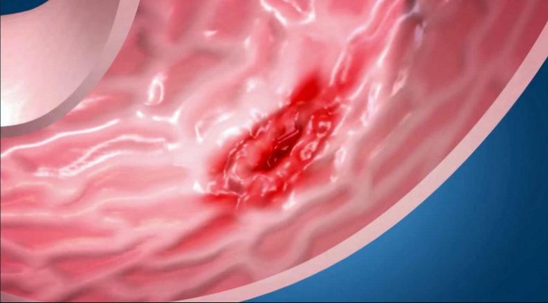 Изжога и патологии поджелудочной железы