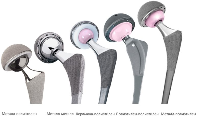 Протезы тазобедренного сустава, цены и особенности