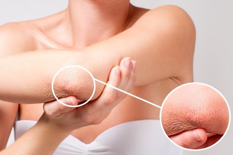 Что делать, если шелушатся локти